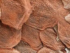 Imagen al microscopio electrónico de la piel