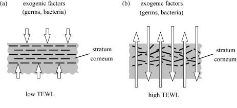Baja y elevada pérdida de agua transepidérmica TEWL