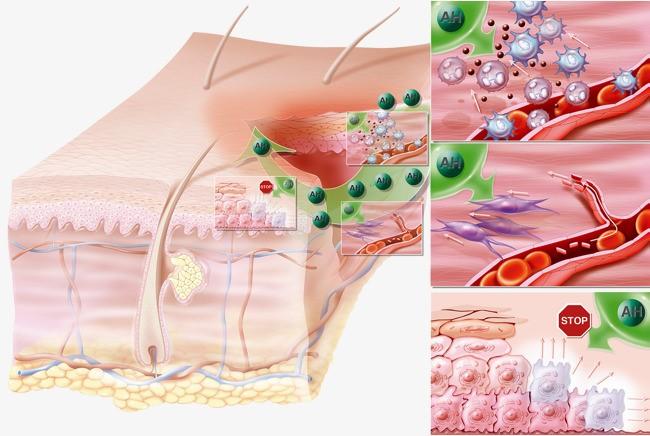 Reacción de la piel ante una inflamación