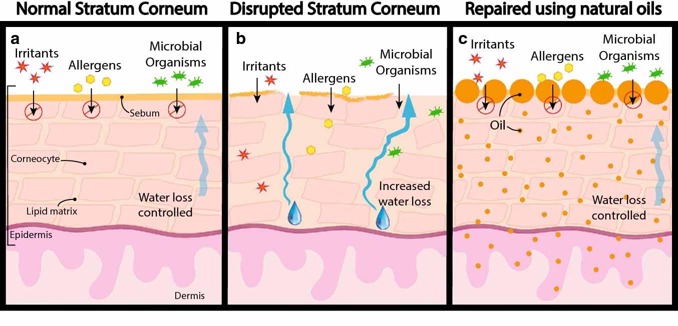 Regeneración de la piel