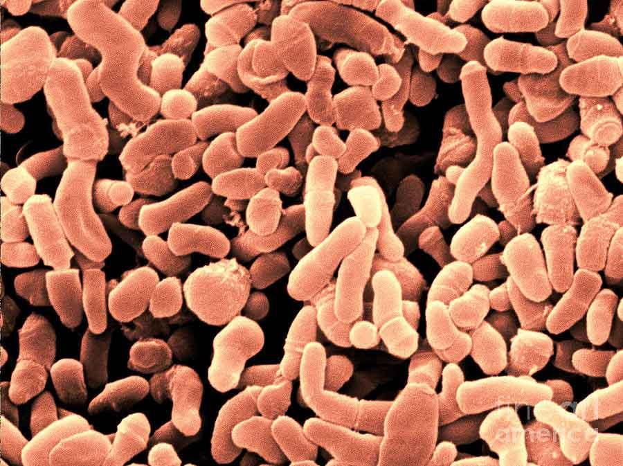 Bacterias causantes del acné