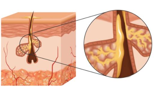 Producción de sebo en las glándulas sebáceas